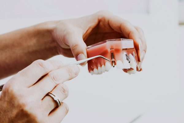 Dental Lavelle The Importance of Replacing Missing Teeth