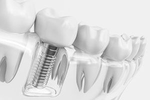 Dental Lavelle Implant Dentistry