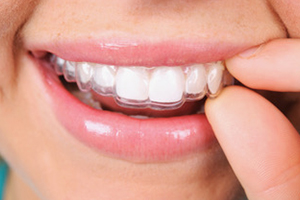 Dental Lavelle Invisalign Clear Aligners