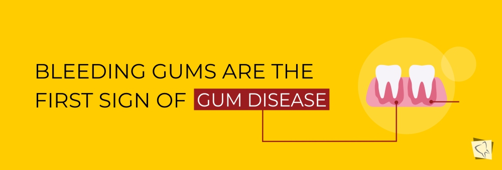 Dental-Lavelle-Dental-Symptoms-And-What-They-Mean-Bleeding-Gums