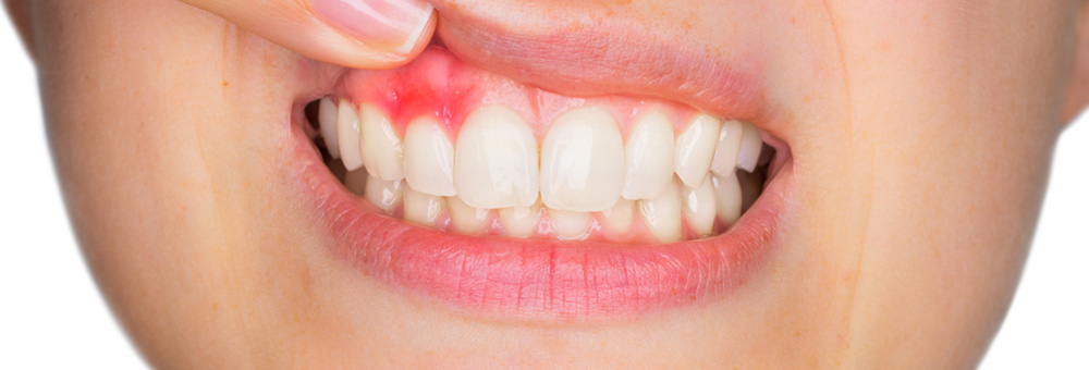 Dental-Lavelle-Dental-Symptoms-And-What-They-Mean-Mouth-Sores